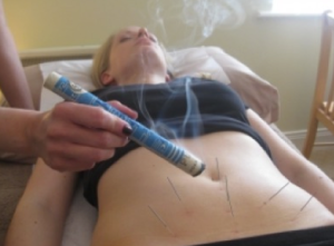 Acupuncture and mocsa over the womb